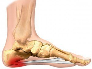 An illustration of foot pain