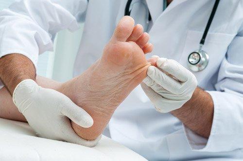 medico tocca il mignolo del piede