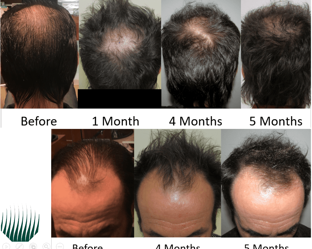 Client reviews of stop and regrow