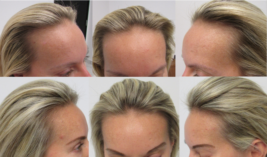 Stop and reGrow can grow and thicken naturally thin hair