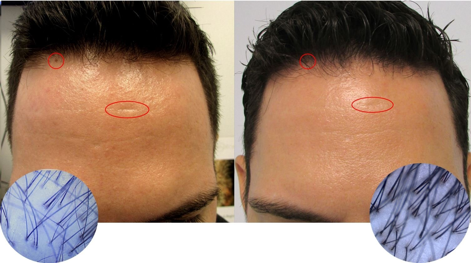 hair regrowth case study, hair growth reviews