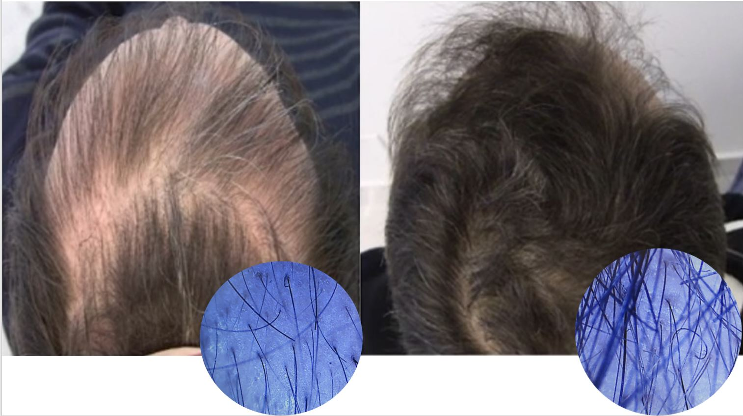 21 Months of Stop and regrow treatment for hair loss