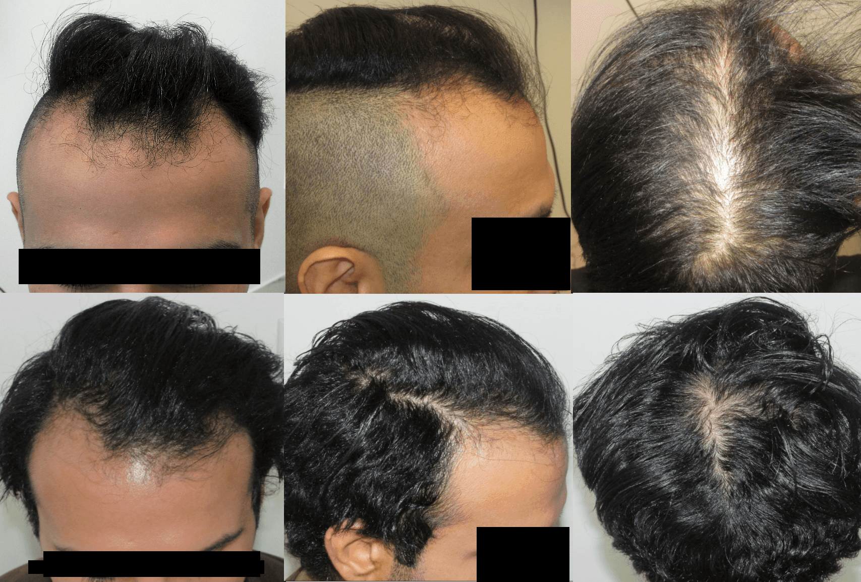 Best receding hair loss treatment for male pattern baldness