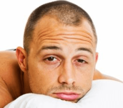 DHT, dihydrotestosterone causes miniaturization leading to hair loss