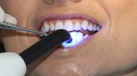 estetica dentale, igiene orale