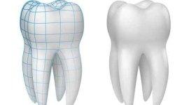 progetto protesi dentale