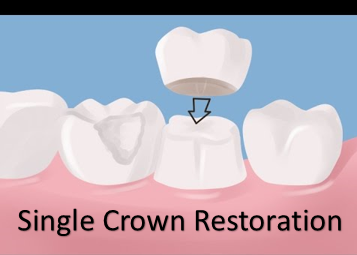 diagram of single crown restoration