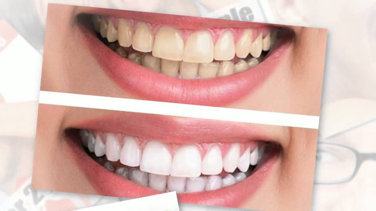 tooth whitening smile before and after