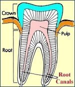 root canal treatment in Norwalk, CT