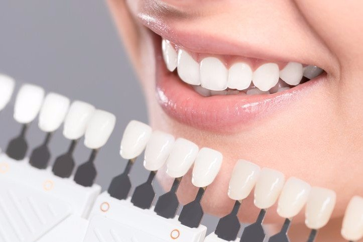 root canal therapy in Norwalk, CT