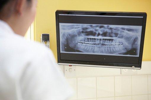autoclavi,turbine e altri accessori dentistici e accanto un dispositivo bianco con un piccolo schermo lcd e dei tasti