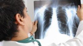 radiologia tradizionale, mammografia, ortopantomografia