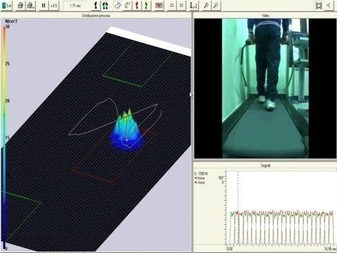 Analisi computerizzata del passo