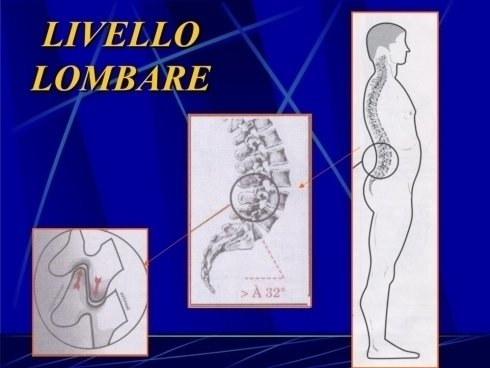 Livello lombare