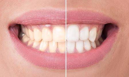 Close up to teeth whitening comparison