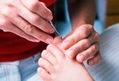 Operating on ingrown nail