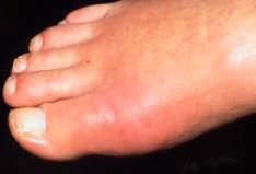 Foot showing signs of gout