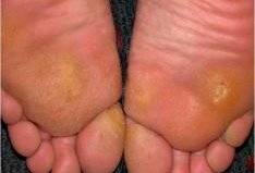 Soles of feet with calluses