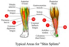 Typical areas for shin splints