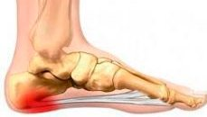 Illustration showing foot pain area