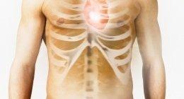 angioplastica, accessi vascolari, trombosi