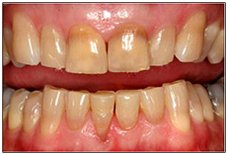 Tooth Whitening Cocoa, FL