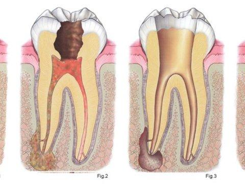 terapia canalare denti