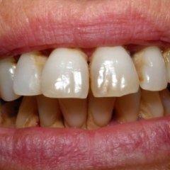 parodontosi piorrea salerno in campania