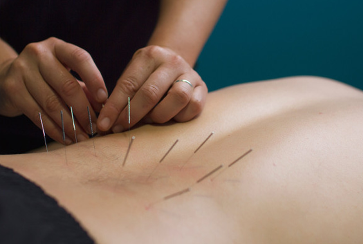 Anatomical Acupuncture