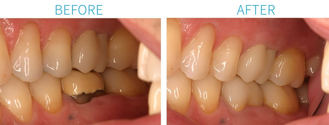 CEREC Porcelain Crowns in Midtown Manhattan, NY