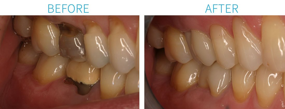 Porcelain Crowns, Only, Bonding in Midtown Manhattan, NY
