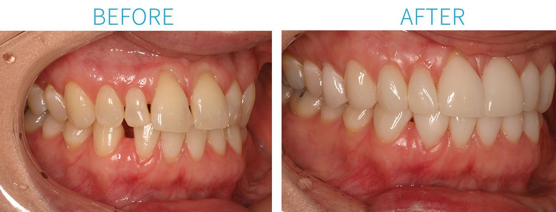 Porcelain Veneers from NY Smile Specialists in Midtown Manhattan, NY