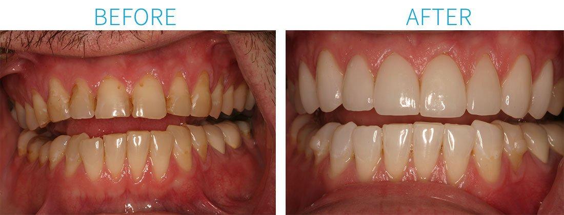 Full Mouth Rehabilitation in Midtown Manhattan, NY