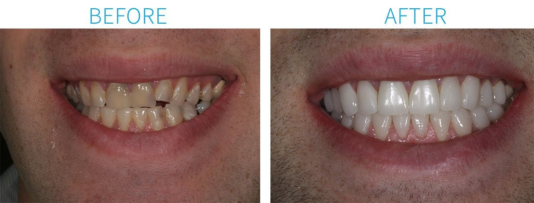Invisalign & Smile Makeover with Porcelain Crowns in Midtown Manhattan, NY