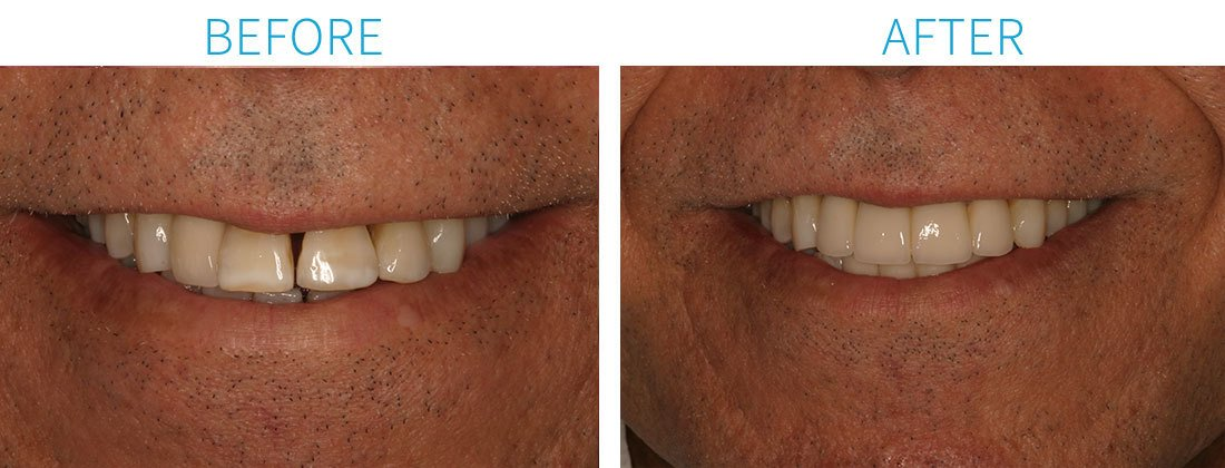 Porcelain Crowns in Midtown Manhattan, NY from NY Smile Specialists