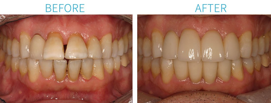 Porcelain Crowns Cosmetic Dentistry in Midtown Manhattan, NY