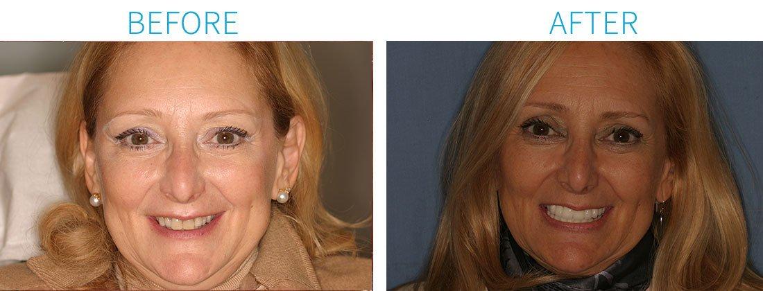Full Mouth Rehabilitation - Orthodontics in Midtown Manhattan, NY