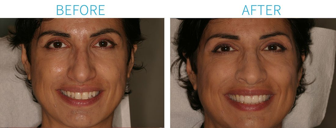 Porcelain Veneers from Cosmetic Dentists in Midtown Manhattan, NY