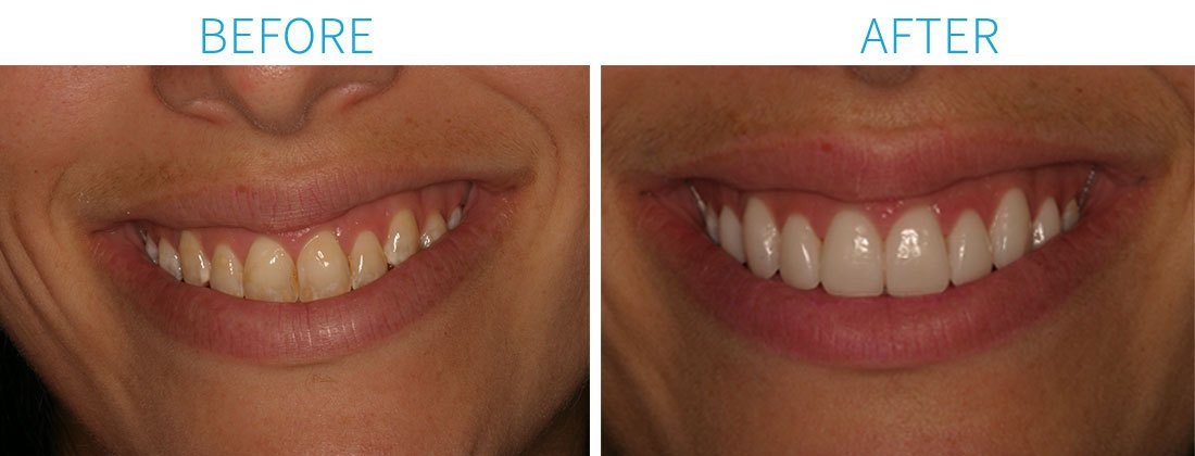 Before & After Cosmetic Dentistry in Midtown Manhattan, NY