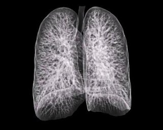 Tac dei polmoni