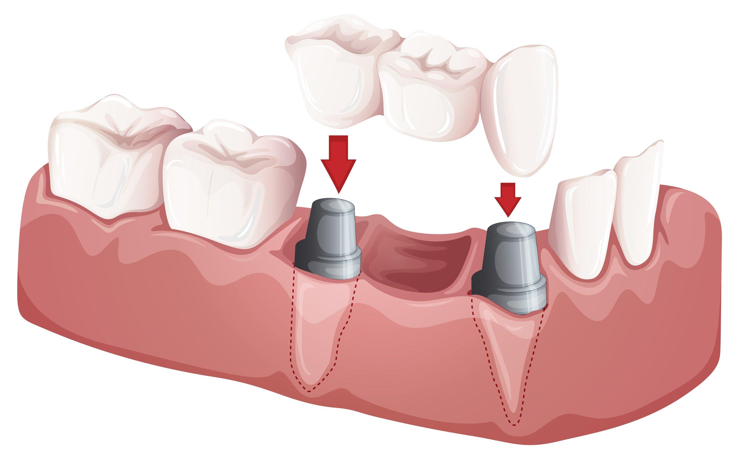 dental bridge porcelain