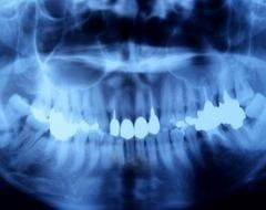 dentista a portici napoli