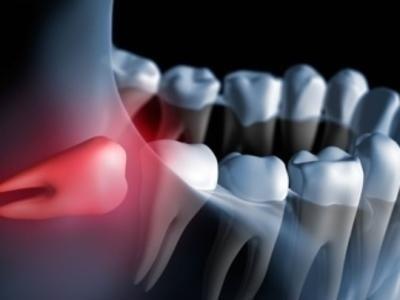 chirurgia cavo orale