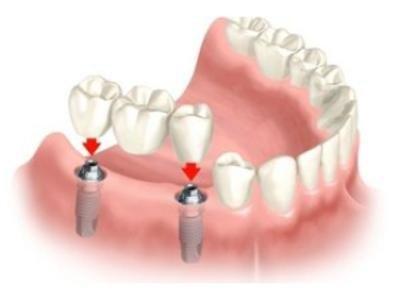 implantologia dentistica