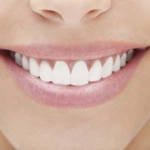 sbiancamento-estetica-dentale