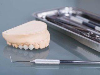 protesi dentali removibili