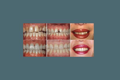 Protesi fisse e faccette in ceramica per migliorare il proprio sorriso