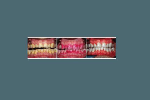 Alcune immagini che mostrano i risultati ottenibili da un interventio di igiene dentale