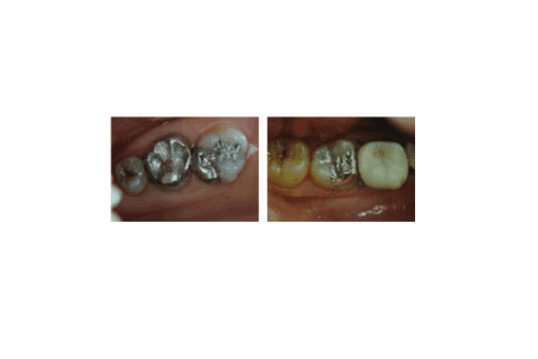 Alcune immagini del composto utilizzato per interventi di restauro al dente cariato