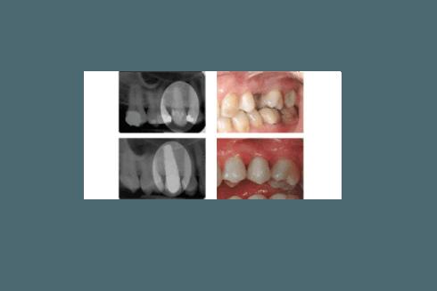 Intervento di impianto: prima e dopo